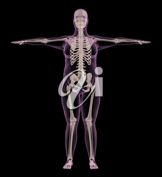 3D render of a medical skeleton of an overweight female