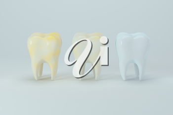 Changing of the tooth color from yellow to white, 3d rendering. Computer digital drawing.