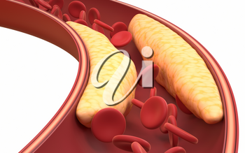 Fat and red blood cells in blood vessels, 3d rendering. Computer digital drawing.