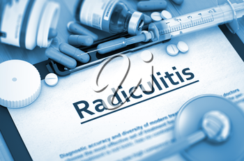 Radiculitis, Medical Concept with Pills, Injections and Syringe. Radiculitis Diagnosis, Medical Concept. Composition of Medicaments. Radiculitis, Medical Concept with Selective Focus. 3D Render.