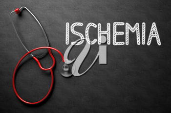 Medical Concept: Ischemia Handwritten on Black Chalkboard. Top View of Red Stethoscope on Chalkboard. Medical Concept: Black Chalkboard with Ischemia. 3D Rendering.