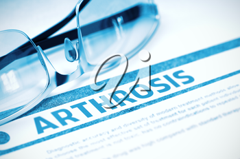 Diagnosis - Arthrosis. Medical Concept on Blue Background with Blurred Text and Eyeglasses. Selective Focus. 3D Rendering.