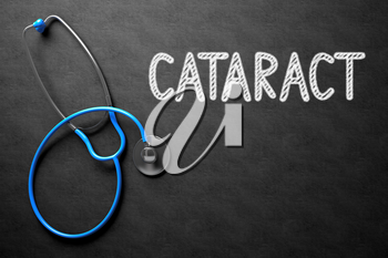 Medical Concept: Cataract - Medical Concept on Black Chalkboard. Cataract. Medical Concept, Handwritten on Black Chalkboard. Top View Composition with Chalkboard and Blue Stethoscope. 3D Rendering.