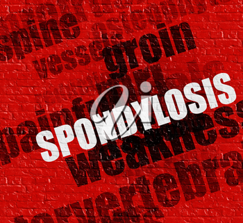 Modern medicine concept: Spondylosis on Red Brick Wall . Spondylosis - on Wall with Wordcloud Around .
