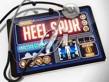 Royalty Free Clipart Image of Heel Spur Diagnosis on a Tablet